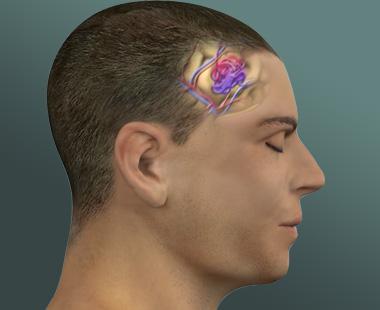 Vascular malformation