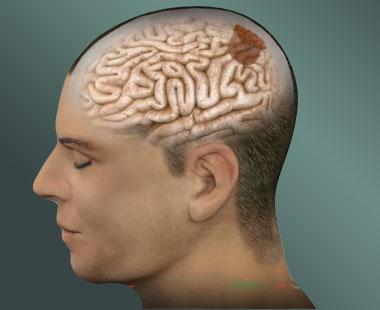 Brain tumors